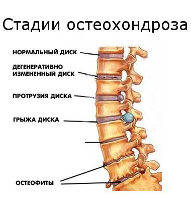 Harp valud Arthise artriidi raviskeem