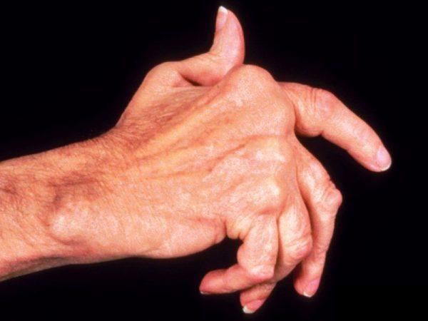 Jaapani liigeste kondroitiini ravi Sormede liigeste valu paindumisel kui raviks