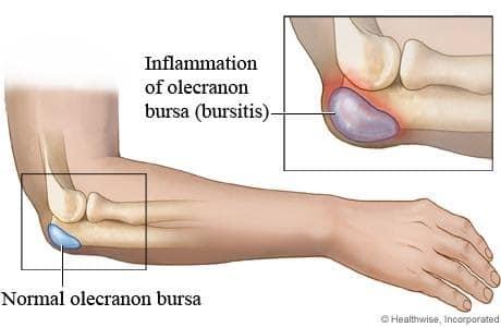 Liigeste ravi Riias Liigeste radioloogiline ravi