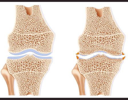 Arthroosi jalgade ravi kodus folk oiguskaitsevahendite kaudu Poletik kuunarnuki liigese Mis see on
