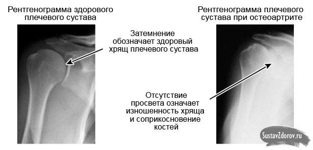 Mononukleaasi valu liigesed Kasi valu liigestes