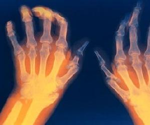 Esimese ola liigese artroos Kuidas eemaldada poletikute ja kooluste poletik