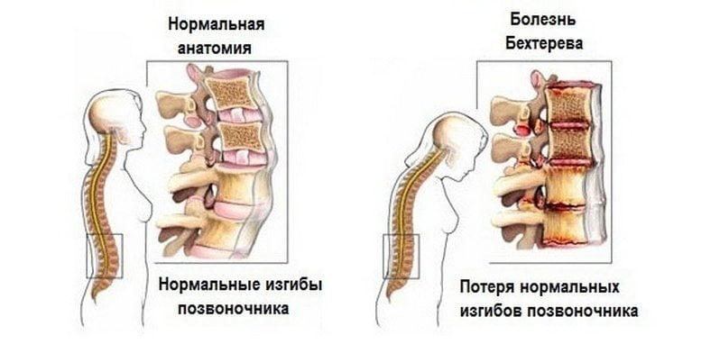 Liigeste haiguse paindlikkus