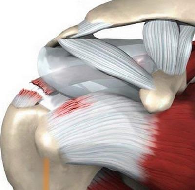 olaliigese 2 kraadi artroos, mis see on Artriit Tweet Sustav Foot