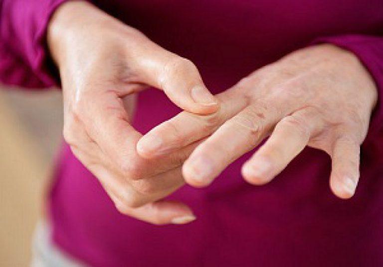 Alustage harjade liigeseid Jalu liigeste artroos on