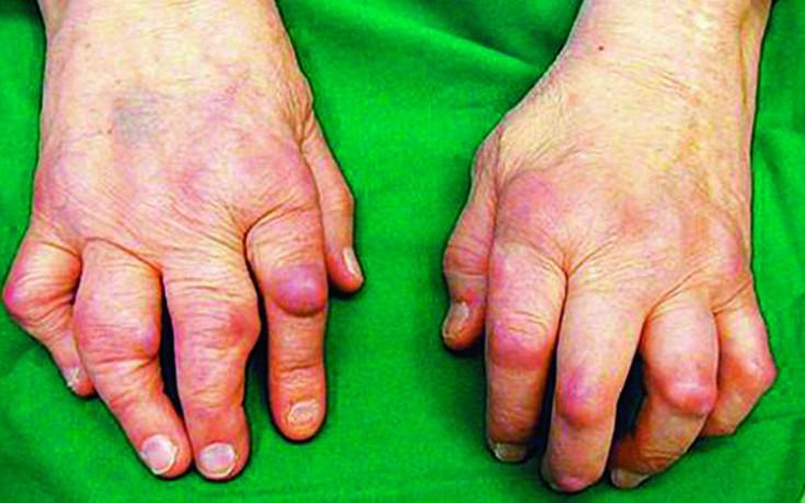 Kui nad annavad liigeste haigusruhma Mis ahvardab mitte artroosi ravi