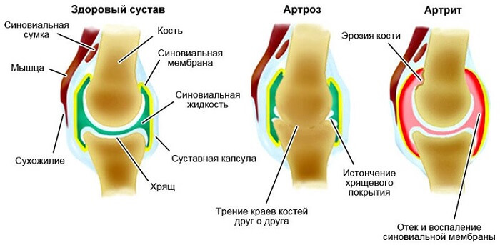 Faktid liigeste haiguste kohta