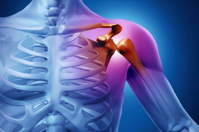 Ravi liigeste skeemid murda liigesed haigusega, mida teha