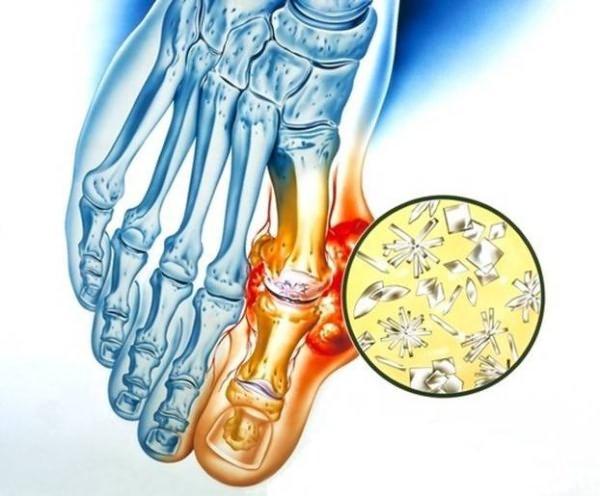 Ravi liigeste skeemid Mida teha, kui liigesed on vaga valus