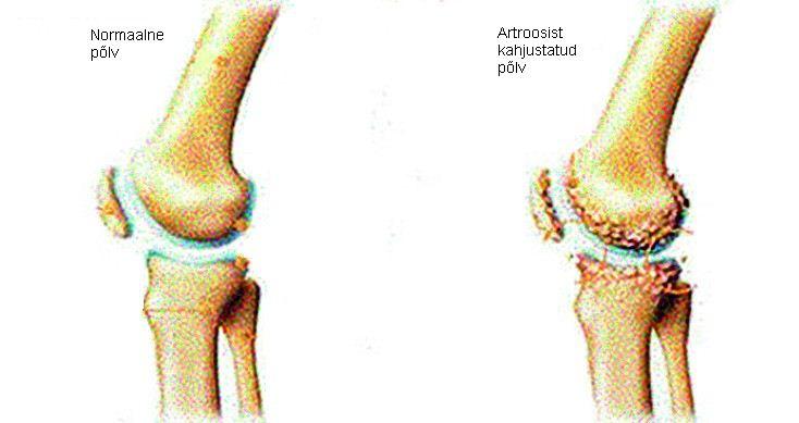valus liigesed 1 4 aasta jooksul Mis on artriit ola liigeste