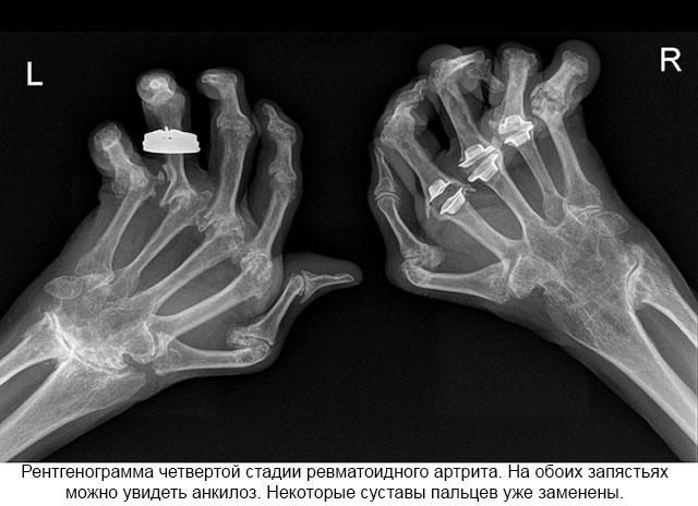 Kate artroosi ja artriidi Valu kate kate liigestes on