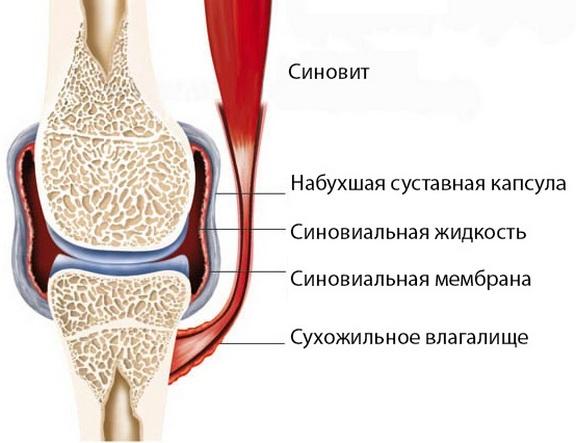 Hullide haigete liigeste ravi Parimad vahendid osteokondroosi raviks