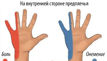 Bold liigesed suurte sormede Artrohi margid ja ravi
