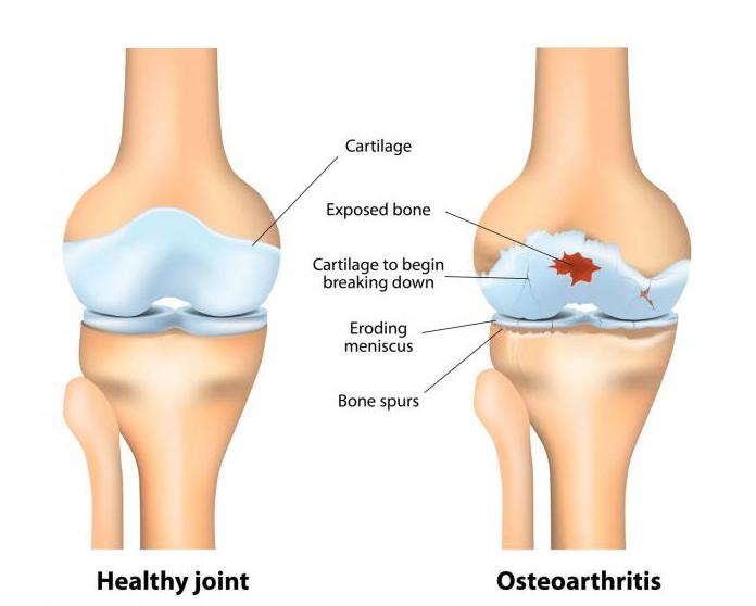 Mazi valu liigeste ja lihaste hinnad seljavalu ja tagaliigendid