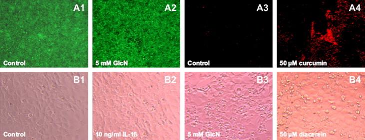 Glukoosamiin ja chondroitiin krabi