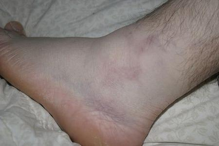Haige jalad ja harjad Inimese katede luudide ja liigeste haigused
