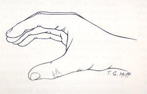 haiget kate ja sormede liigestele, mida teha