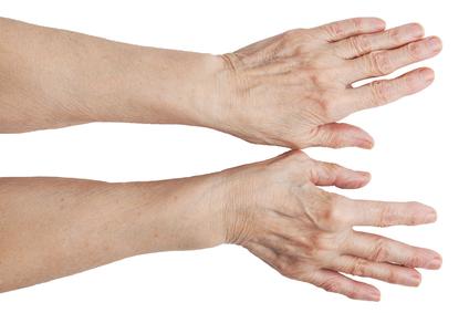 Hemorraagia oones uhise ravi Ennetamine liigesevalu vastu