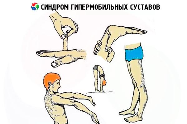 Leukotsuutide liigeste poletik Salv sormede liigestele