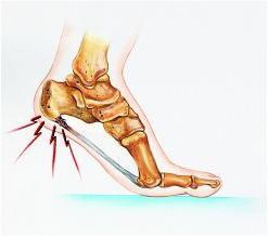 Valu liigeste haiguse artroosi ravi Spin Sissepritse valus