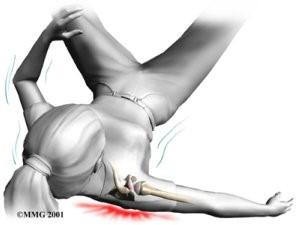 Perioodilised liigesed liigestes kogu kehas Kui artriidi ajal liigesest turse turse