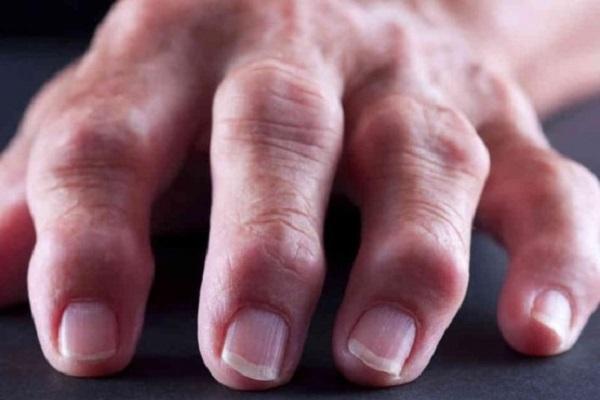 Kuidas aidata sorme artriidi abil