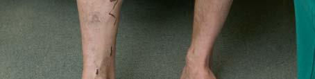 Sorme liigesepoletik parast vigastust Age artroosi ravi aeg