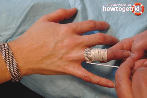 Pohjus valu ola ja kuunarnuki liigeste ravi Salvi liigeste vigastustes