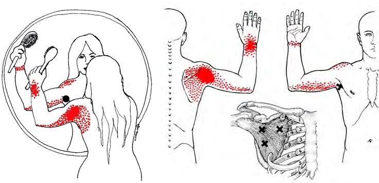 valu pahkluu liigeses kondis kui ravida Arthroosi tuvirakkude ravi