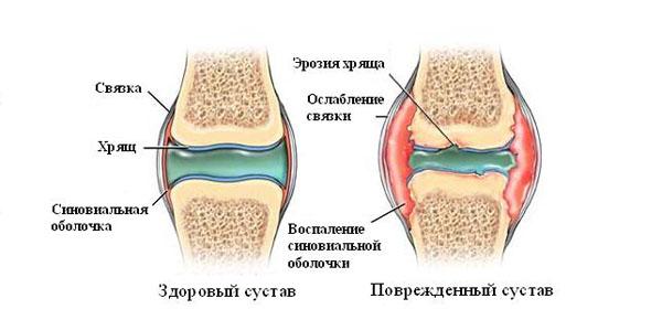Mis vahe on artriidi artriidi vahel ola liigese