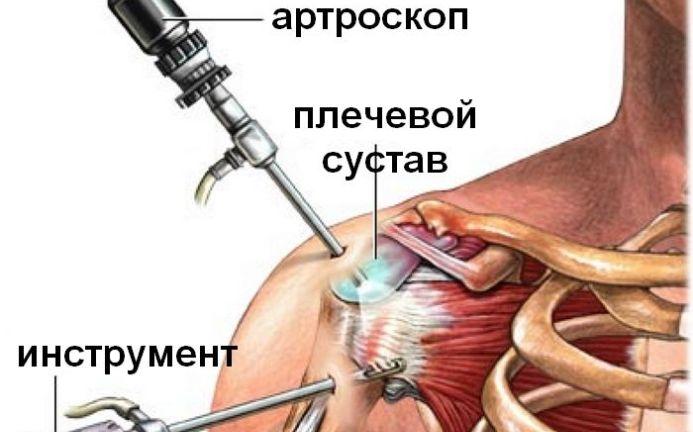 Ola liigesevalu parast vigastust