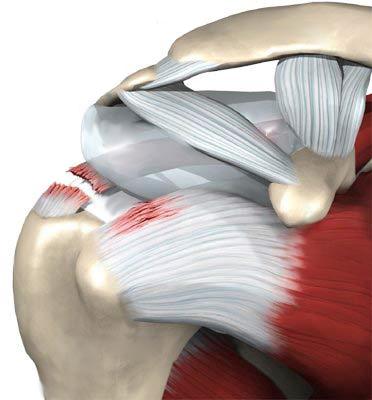 Artroosi toodeldakse
