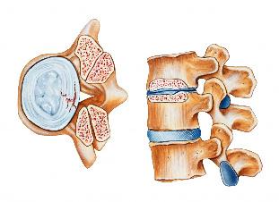 Osteokondroosi valu liigeste kates Koor seljavalu liigestest