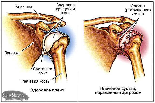 Koik lihased ja liigesed haiget, mida teha