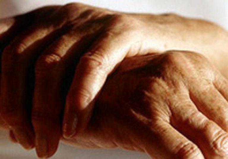 Poidla artriidi poletiku poletiku Osteokondroos taga