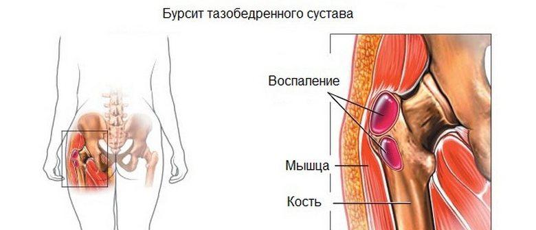 Ravi liigeste skeemid Parast pirni, harjad haiget