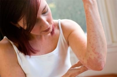 valu polve liigestes kui ravida valu vasaku kae ola liigeses ja