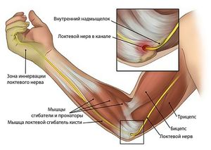 Folkmeditsiin ola liigese artroosi ravis Jala-ravi salvi poletik