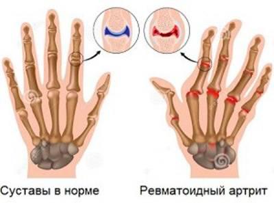 Sormeliigese artriit kae peal