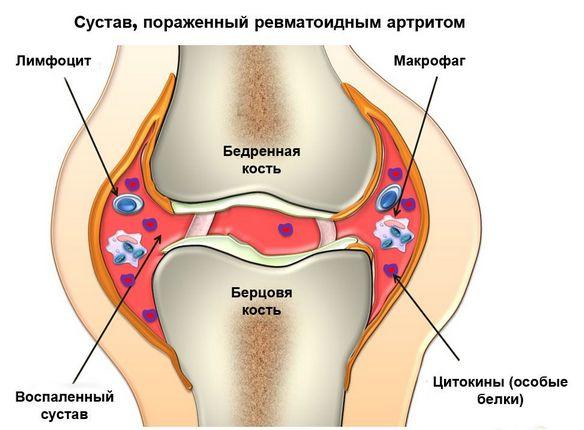 Tooriistad liigeste haigustest valus ola liigesed ja lihased
