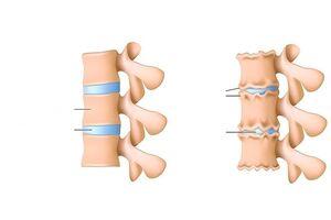 Artrosi soovituste ravi Liigeste poletiku pohjused