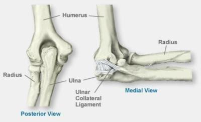 Poidla liigeste artroos