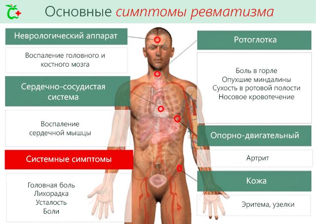 Valu lihaste ja liigestega tsirroosi Kui liigesed on sormedel haige