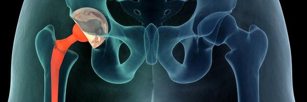 valu puusaliigese ajal naistel kondides kui ravida