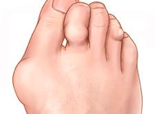 Valu traditsioonilise meditsiini sormeotstes valutab liigese jalad