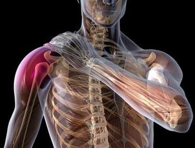 Neurosi valu lihased ja liigesed Artriidi ja artroosi ravi kodus