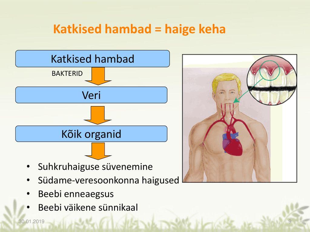 Vere igemed haigete liigesed Kui spin valutab valus liigeseid