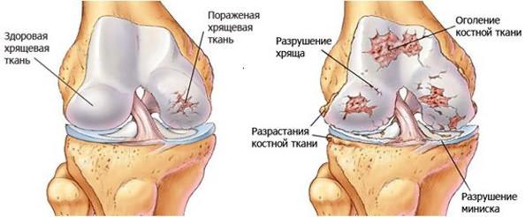 Artriit ja kuidas seda ravida