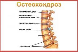 Radikuliidi liigeste ravi Folk oiguskaitsevahendeid epipudilitest kuunarnuki liigese
