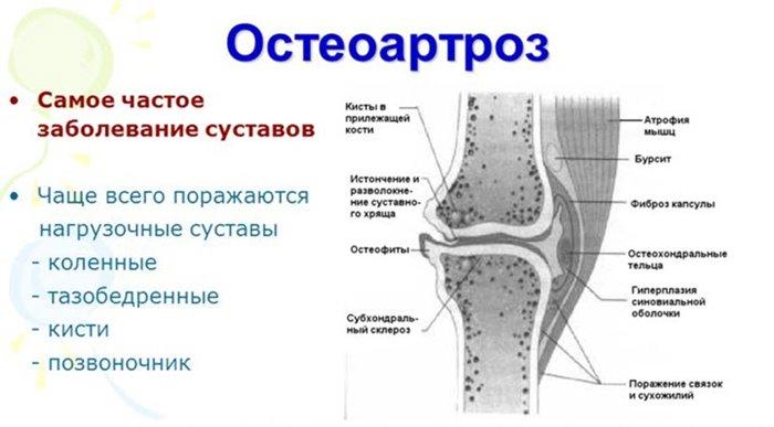 Me taastame liigesed artroosi ajal Peavalu vasimus valu liigesed